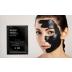 Black Mask – Máscara Preta Pontos Negros e Acne